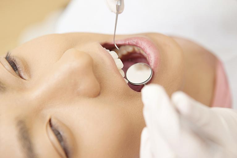 アライナー型の矯正装置矯正治療中でも普通の歯科治療が可能です